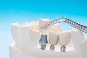 Foto capsule dentali Roma